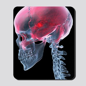 Headache, X-ray artwork Mousepad